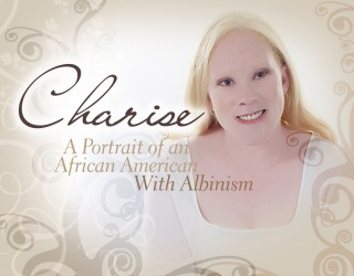 Charise Albinism Documentary